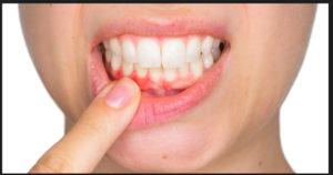parodontite come curarala
